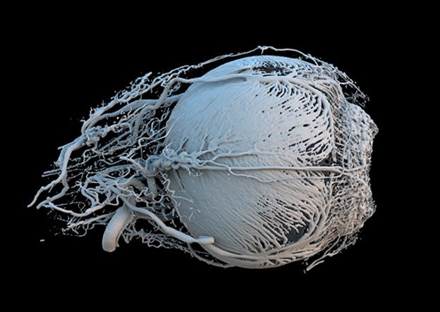 Winner of the Wellcome Image Awards 2017: 3D model of the eye of a healthy mini-pig eye